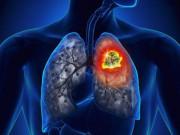 Đa số người Việt mắc bệnh Ung thư phổi vì thói quen tệ hại này!