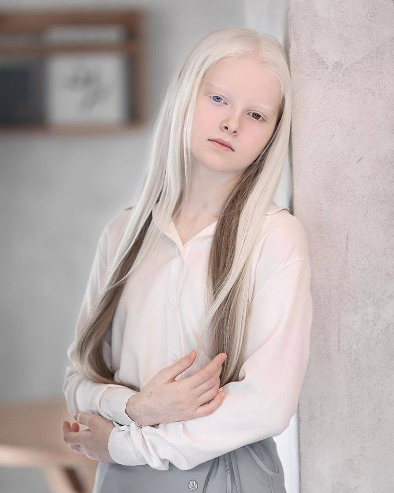 Cô gái Nga bị đột biến gen có đôi mắt hai màu, đẹp như tác phẩm nghệ thuật - 3