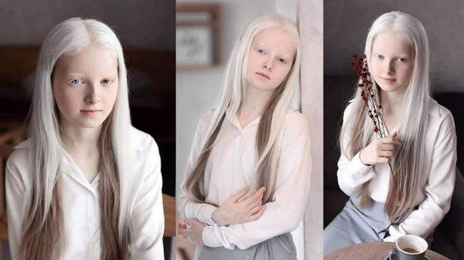 Cô gái Nga bị đột biến gen có đôi mắt hai màu, đẹp như tác phẩm nghệ thuật - 1
