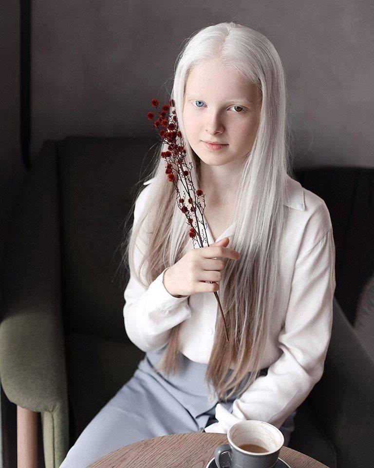 Cô gái Nga bị đột biến gen có đôi mắt hai màu, đẹp như tác phẩm nghệ thuật - 4