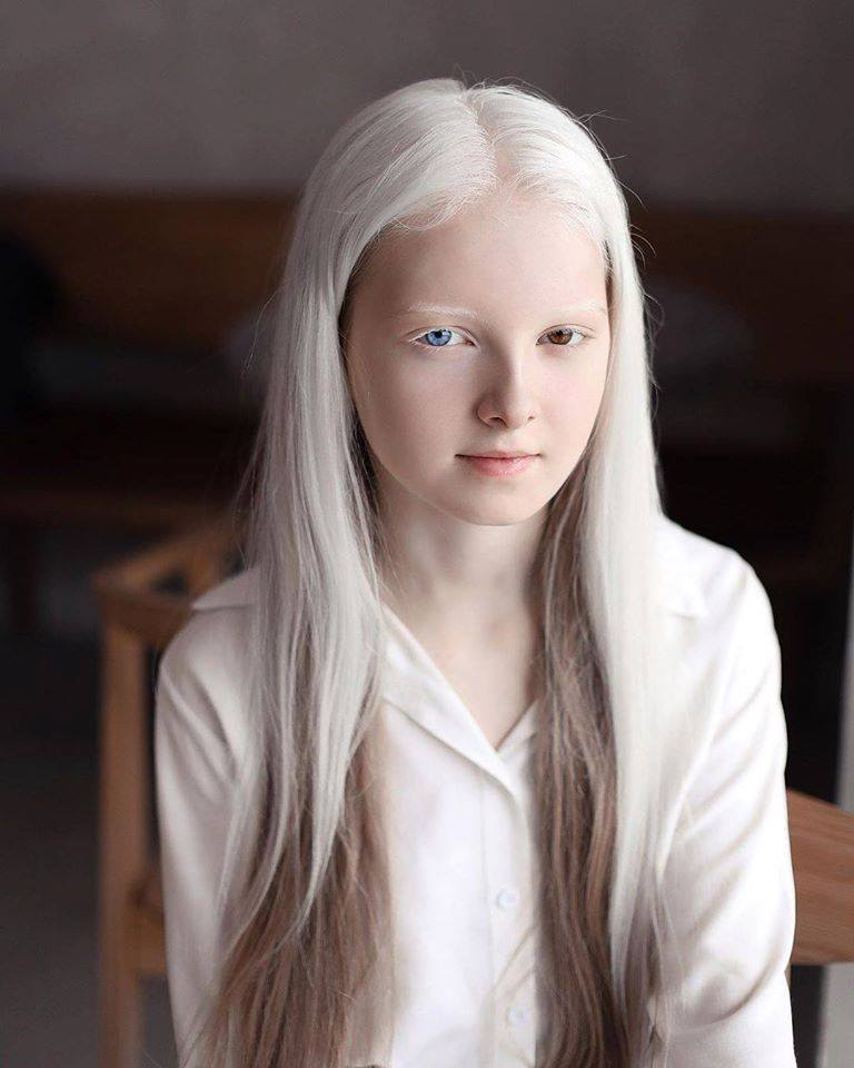 Cô gái Nga bị đột biến gen có đôi mắt hai màu, đẹp như tác phẩm nghệ thuật - 2