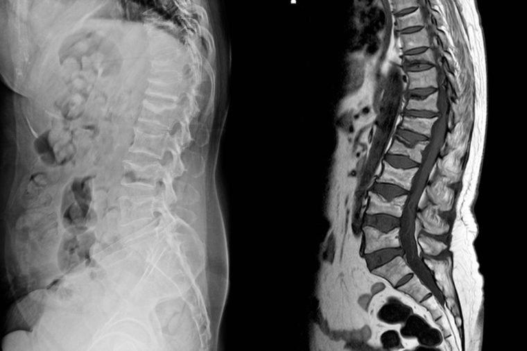 Đau lưng đi kèm 8 dấu hiệu này cơ thể bạn đang gặp nguy, cần đi khám càng sớm càng tốt - 6