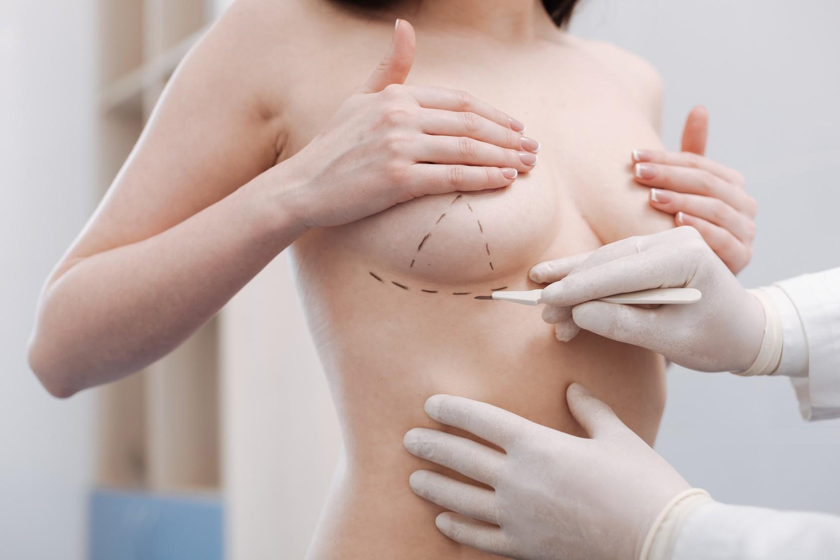 Những điều buộc phải biết trước khi bạn quyết định phẫu thuật nâng ngực - 2