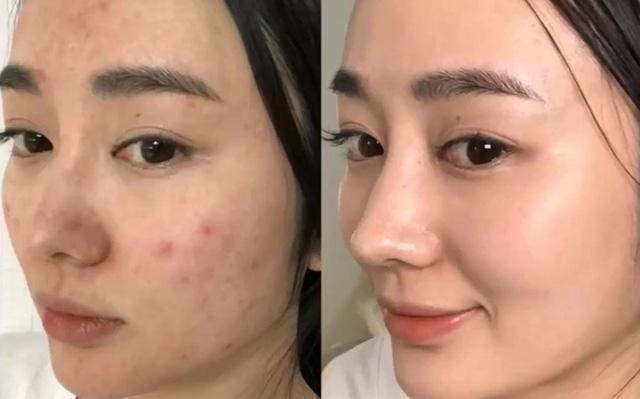Hè đến dễ mụn đầy mặt, tham khảo ngay phương pháp 30 phút để da sạch thoáng - 2