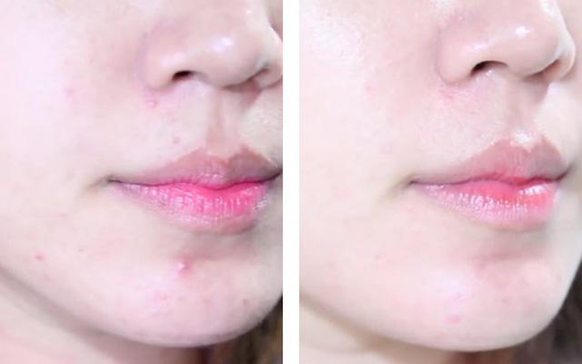 Hè đến dễ mụn đầy mặt, tham khảo ngay phương pháp 30 phút để da sạch thoáng - 3
