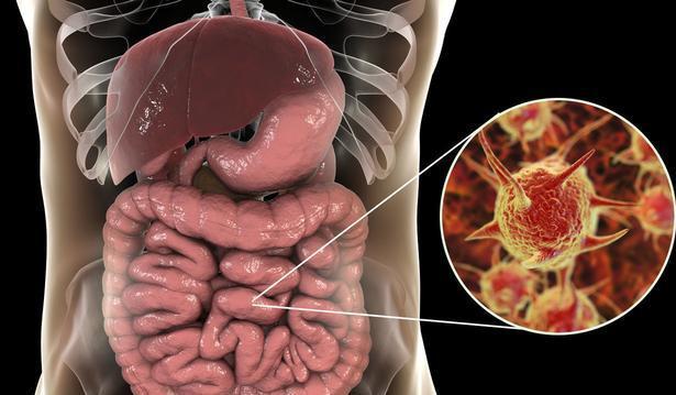 """Cơ thể """"báo động đỏ"""" ở 3 nơi này, chứng tỏ ruột đang có vấn đề trước khi ung thư xuất hiện - 1"""