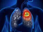 Bị mắc ung thư phổi giai đoạn 3 vẫn có thể sống vui vẻ, khoẻ mạnh nhờ biết cách này!