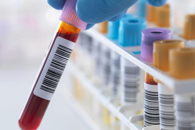 Mỹ: Thử máu không dùng kim, chỉ cần...Smartphone? - 1