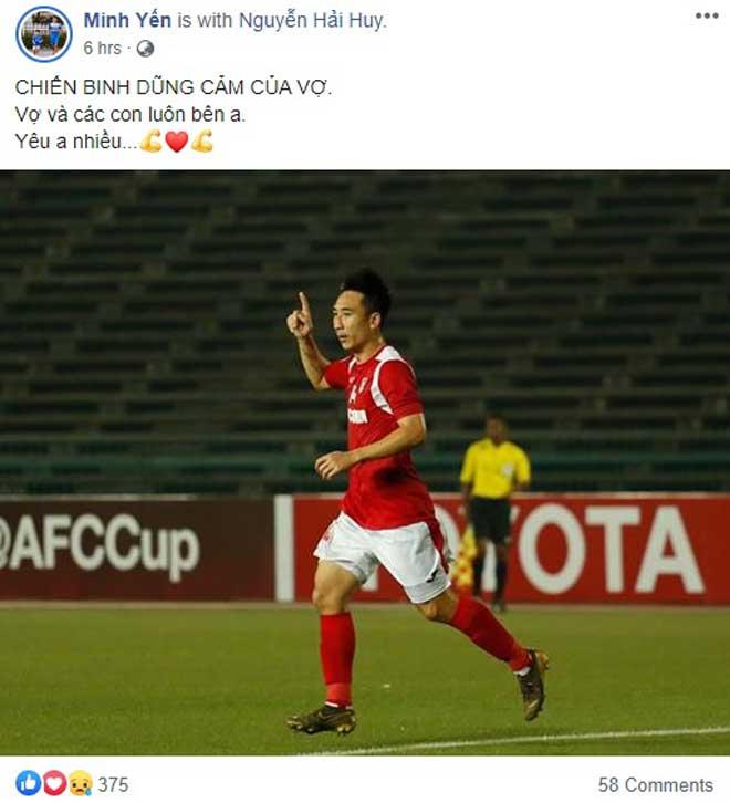 Bàng hoàng tiền vệ Hải Huy gãy chân: Làng bóng đá Việt chia sẻ thế nào? - 4