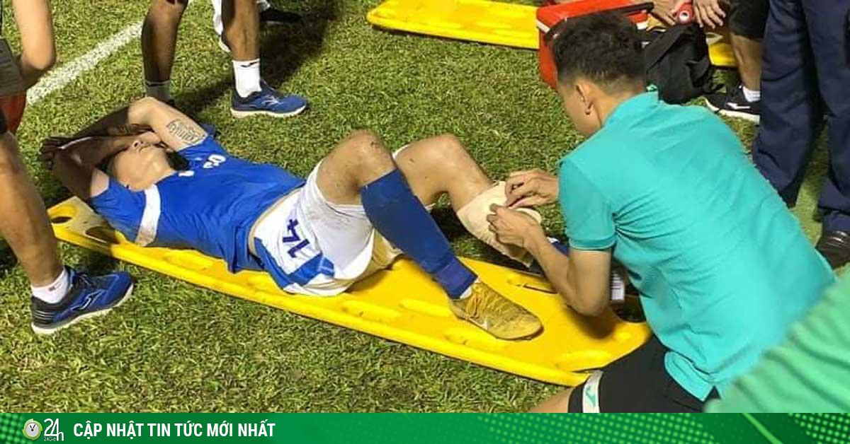 Bàng hoàng tiền vệ Hải Huy bị gãy chân: Làng bóng đá Việt chia sẻ như thế nào?