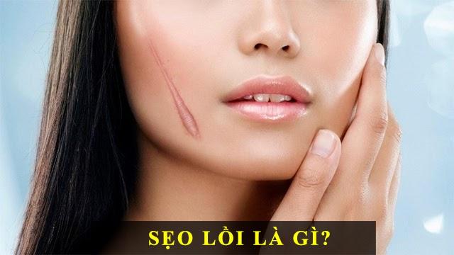 Cách trị sẹo lồi an toàn hiệu quả nhanh nhất - 1