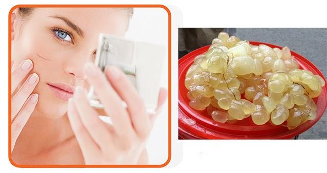 Cách trị sẹo lồi an toàn hiệu quả nhanh nhất - 4