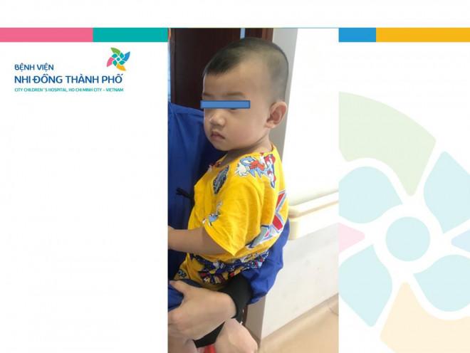 2 ngày nín thở lấy mảnh gương vỡ khỏi bụng bé trai 10 tháng tuổi - 1