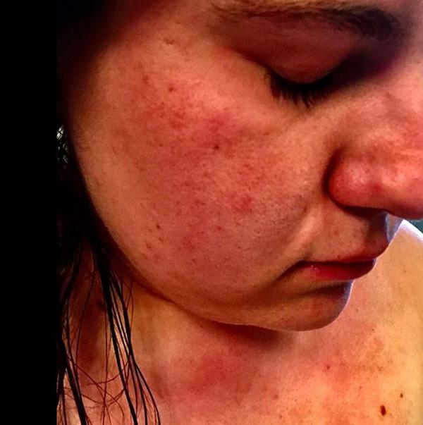 """Mắc phải căn bệnh cực kỳ hiếm gặp, người phụ nữ cứ đụng vào nước là toàn thân """"đỏ rực"""" - 2"""
