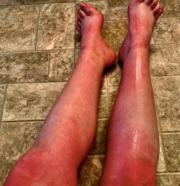 """Mắc phải căn bệnh cực kỳ hiếm gặp, người phụ nữ cứ đụng vào nước là toàn thân """"đỏ rực"""" - 4"""