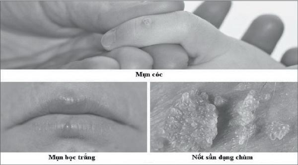 Tình dục bằng miệng, coi chừng lây bệnh - 1