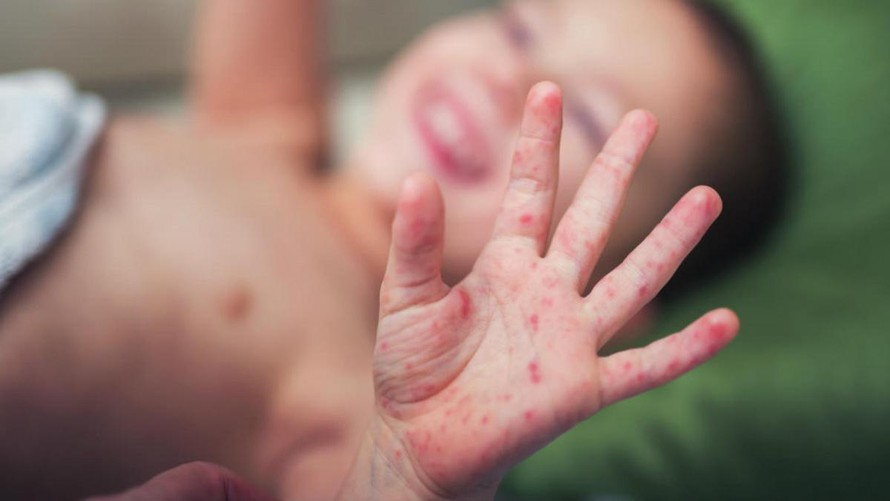 Trẻ mắc tay chân miệng tăng vọt, Bộ Y tế yêu cầu khẩn cấp - 1