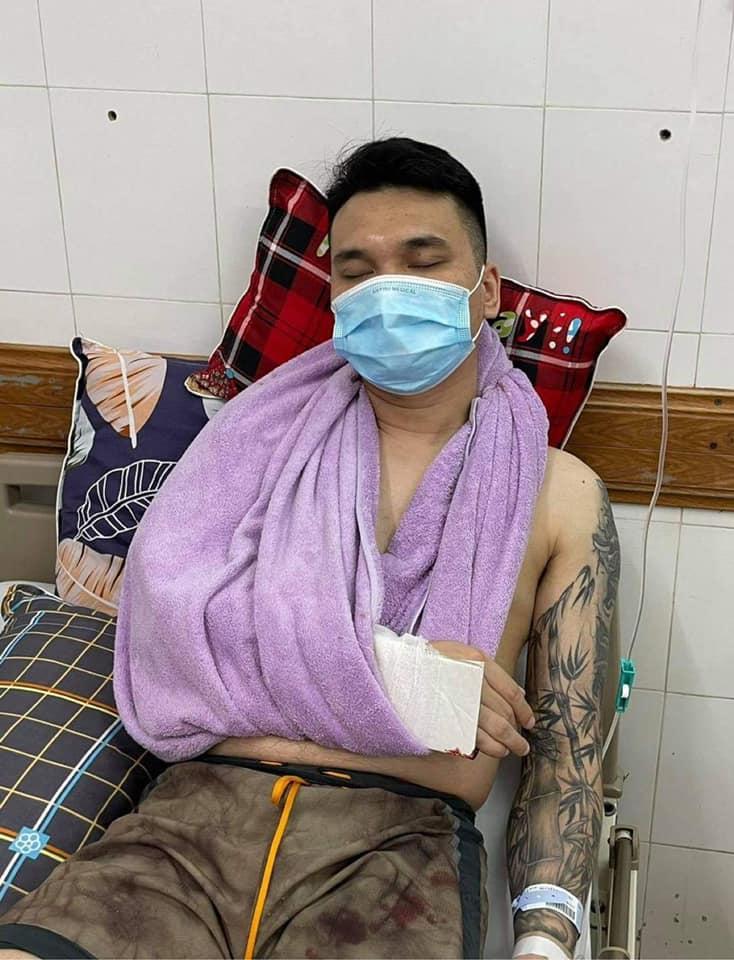 Khắc Việt bị chấn thương nghiêm trọng phải lên bàn mổ - hình ảnh 1