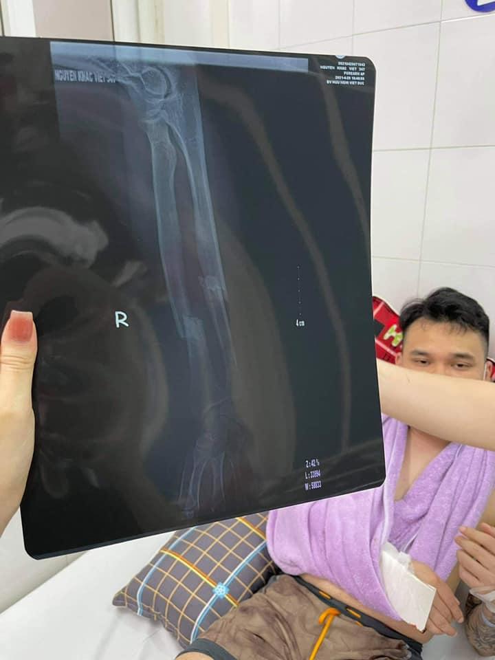Khắc Việt bị chấn thương nghiêm trọng phải lên bàn mổ - hình ảnh 2