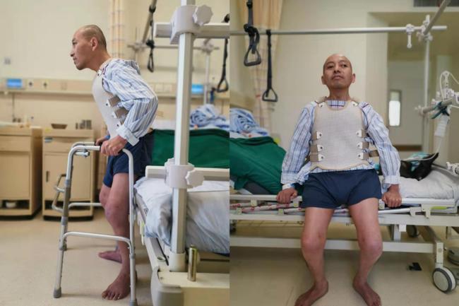Đột ngột mắc bệnh lạ, người đàn ông bị gập đôi người suốt 28 năm và cuộc tái sinh sau phẫu thuật - 5