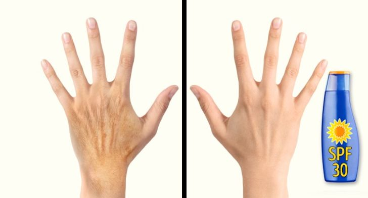 Cách chăm sóc bộ phận tố cáo tuổi tác rõ nhất trên cơ thể bạn - hình ảnh 3