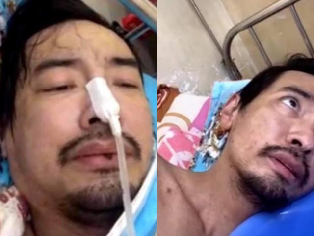 Lý do ca sĩ Việt Quang bị viêm phổi nặng, hốc hác khó nhận ra? - 1