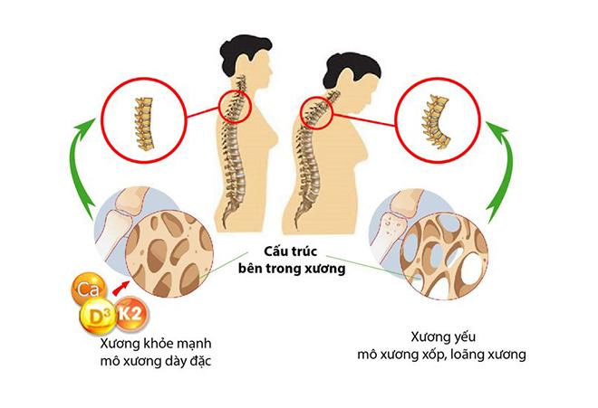 Sự thật ít biết về vitamin K2 trong việc hỗ trợ tăng chiều cao và phòng ngừa loãng xương - 4
