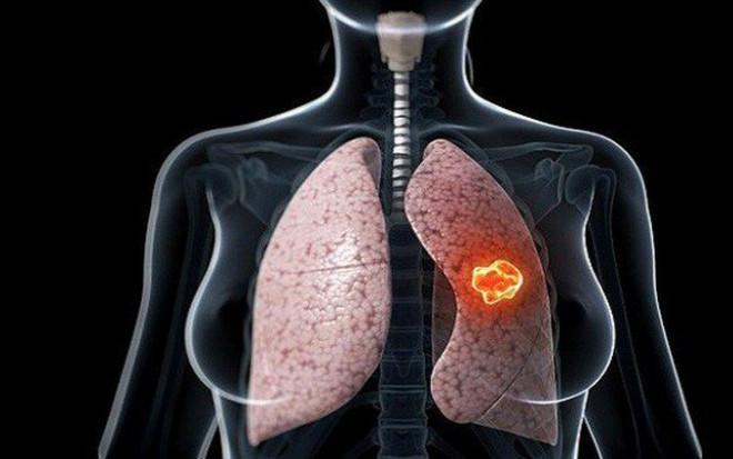 """Cả hai vợ chồng đều mắc ung thư phổi, bác sĩ """"tức giận"""" khi biết lý do - 2"""