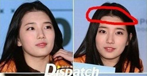 Bạn gái Lee Min Ho bị tố phẫu thuật thẩm mỹ nhiều lần - hình ảnh 1