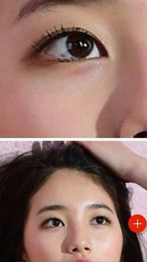 Bạn gái Lee Min Ho bị tố phẫu thuật thẩm mỹ nhiều lần - hình ảnh 6