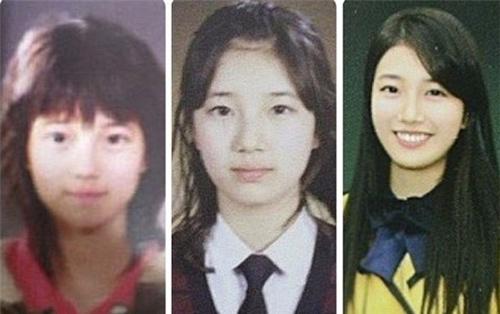 Bạn gái Lee Min Ho bị tố phẫu thuật thẩm mỹ nhiều lần - hình ảnh 5