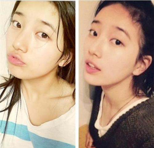 Bạn gái Lee Min Ho bị tố phẫu thuật thẩm mỹ nhiều lần - hình ảnh 8