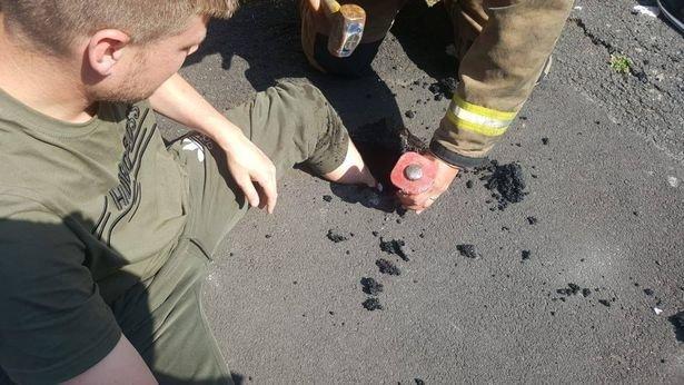 Anh: Nắng nóng kinh dị, người đàn ông bị kẹt cứng chân trên đường - 1