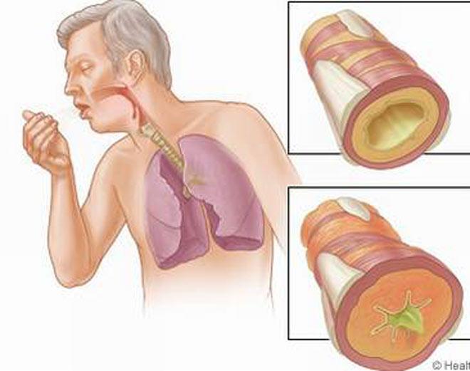 Hen phế quản - bệnh nhẹ mà hoá nặng - 1
