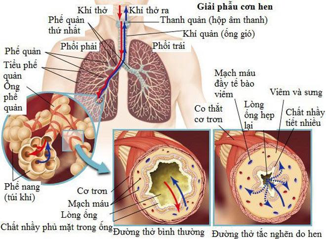 Hen phế quản - bệnh nhẹ mà hoá nặng - 2