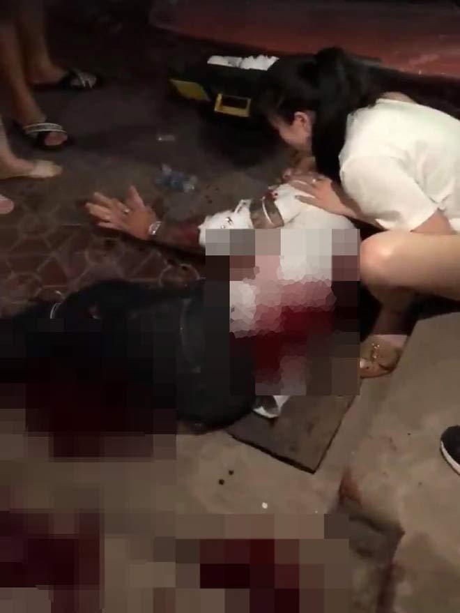 Công an lên tiếng vụ nam thanh niên bị nhóm người bịt mặt chém tàn bạo ở Nam Định - 1