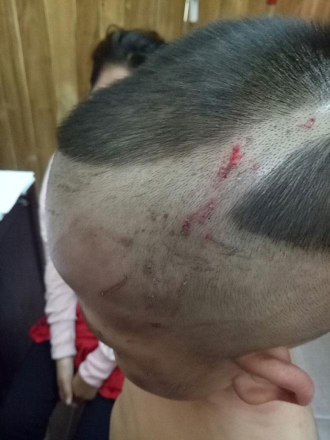 """Thông tin """"sốc"""" vụ bé 3 tuổi bị cha dượng đánh dã man ở Phú Quốc - 3"""