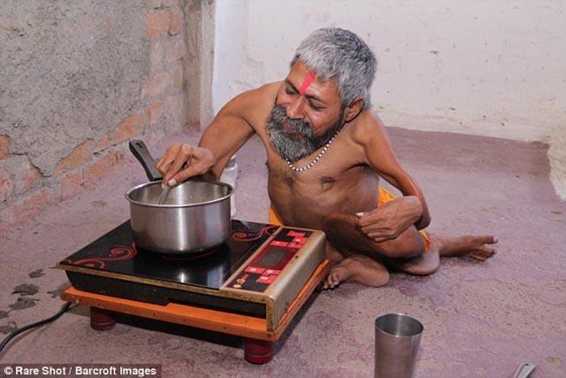 Căn bệnh lạ khiến cho người đàn ông này được ví như một vị thần - hình ảnh 5