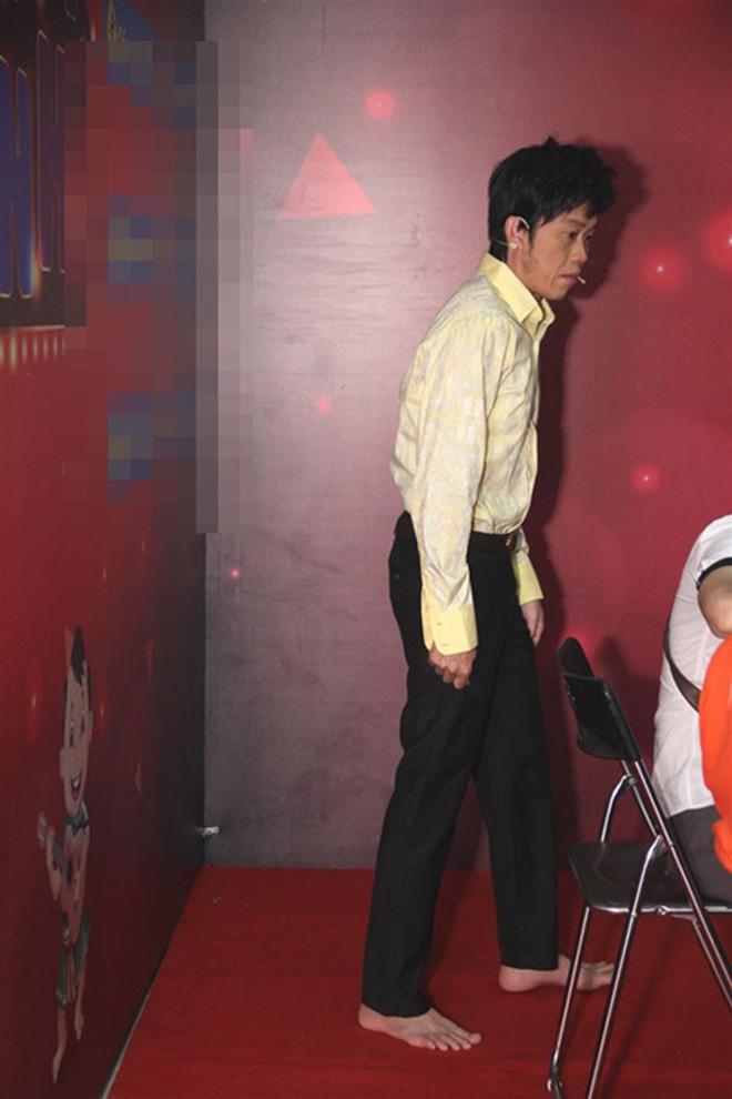 Điều bất ngờ trên đôi chân của Hoài Linh khiến đàn em thấy thương - hình ảnh 3
