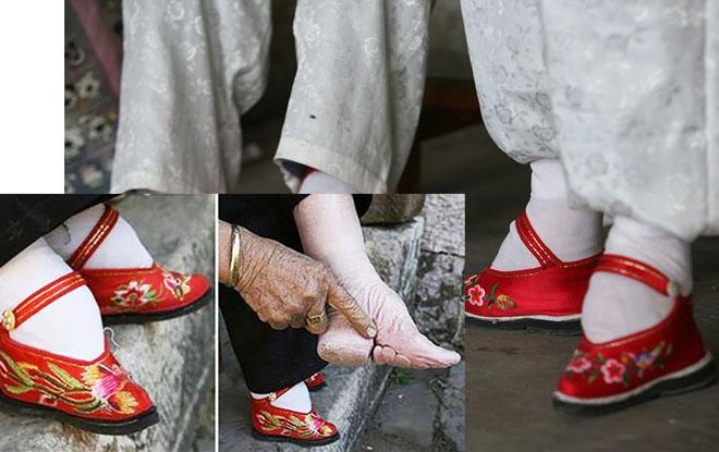 Làm đẹp kỳ quái, đau đớn: Bó chân gót sen, đục mũi, kéo cổ dài - hình ảnh 1