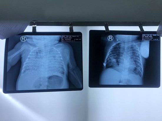 Sốc: Bé trai phổi trắng xoá do nhiễm lao từ cha khi 2 tháng tuổi - hình ảnh 1