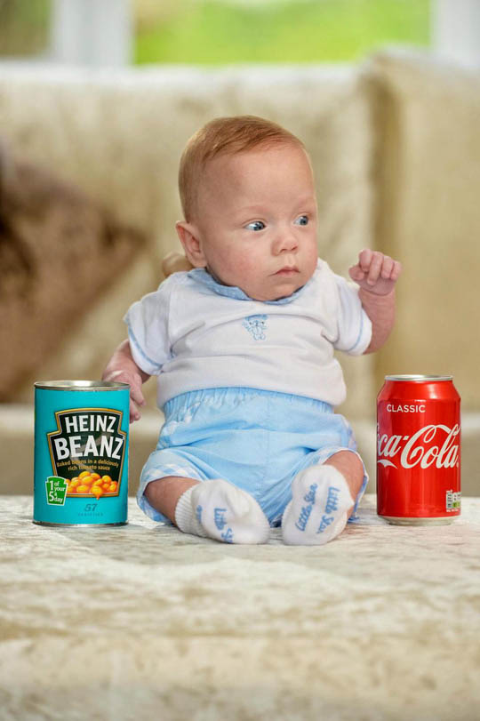Mẹ sắp phá thai lưu, con bỗng ra đời: chỉ 340 g, vẫn sống khỏe! - hình ảnh 3