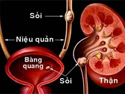 Bài thuốc trị sỏi tiết niệu - 1