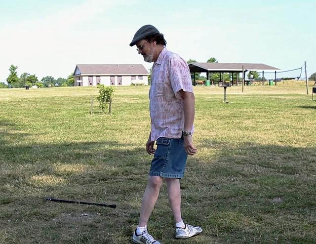 Hội chứng kỳ quái khiến đôi chân người đàn ông này dễ dàng quay ngược 180 độ - 2