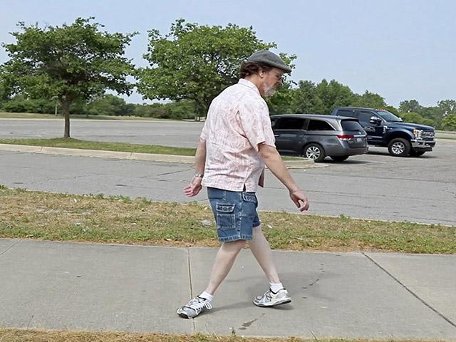 Hội chứng kỳ quái khiến đôi chân người đàn ông này dễ dàng quay ngược 180 độ - 3