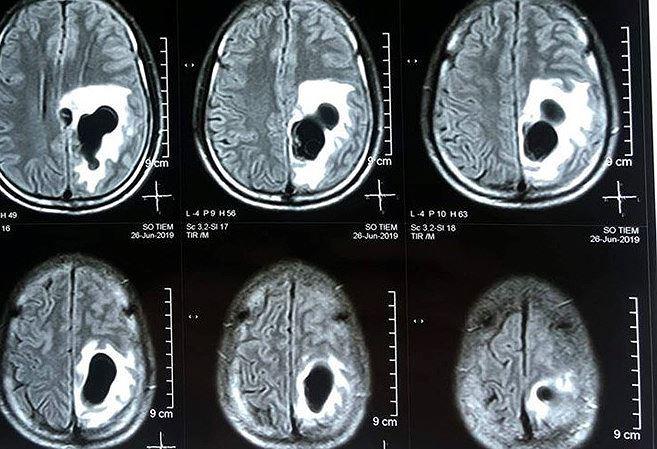 Người đàn ông sán mọc như chùm nho trong não vì món ăn nhiều người Việt 'nghiện' - 1