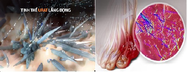 Ai bị bệnh Gút đau rút cả xương: Không hiểu rõ về acid uric, tinh thể urat thì cơn đau Gút còn tái phát - 2