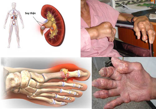 Ai bị bệnh Gút đau rút cả xương: Không hiểu rõ về acid uric, tinh thể urat thì cơn đau Gút còn tái phát - 3