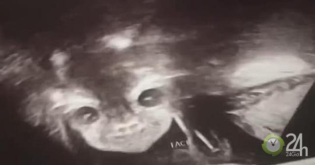 Thú vị hình ảnh siêu âm thai nhi 24 tuần tuổi mở mắt, cười bí hiểm-Sức khỏe đời sống