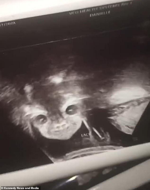 Thú vị hình ảnh siêu âm thai nhi 24 tuần tuổi mở mắt, cười bí hiểm - hình ảnh 1